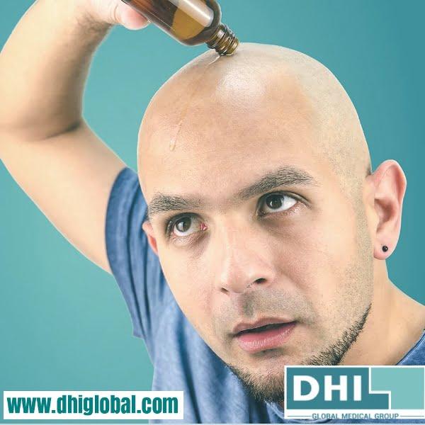 hair loss treatment Kent