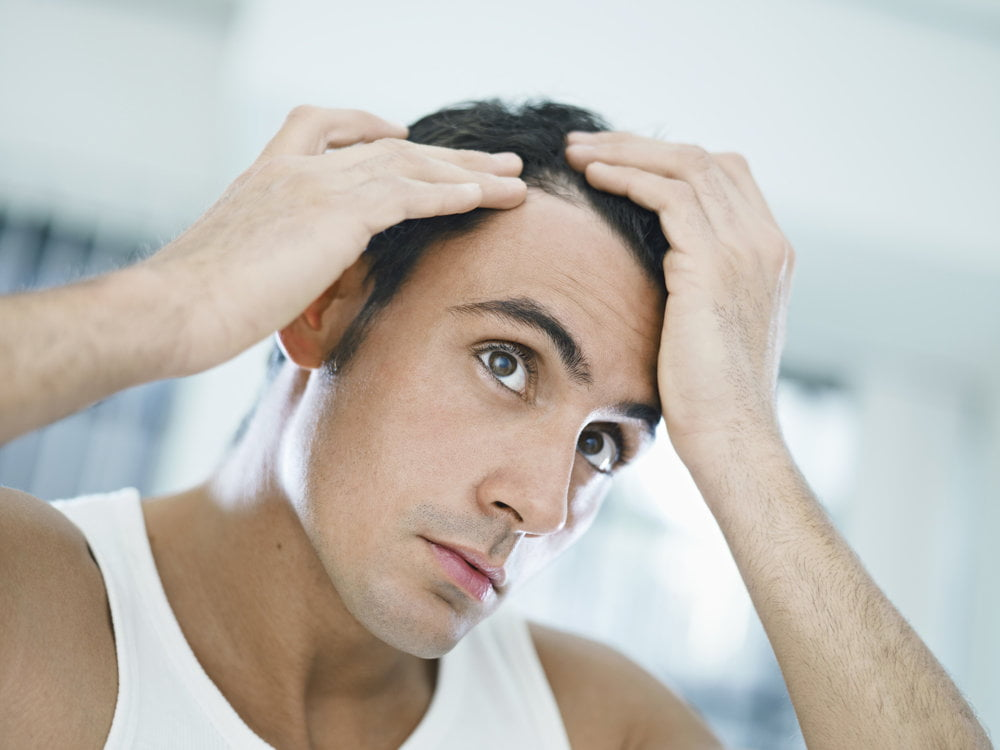 What are the hair loss causes?