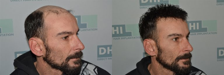 The breathtaking story of a man who found his self again thanks to the DHI Hair Prosthetic department