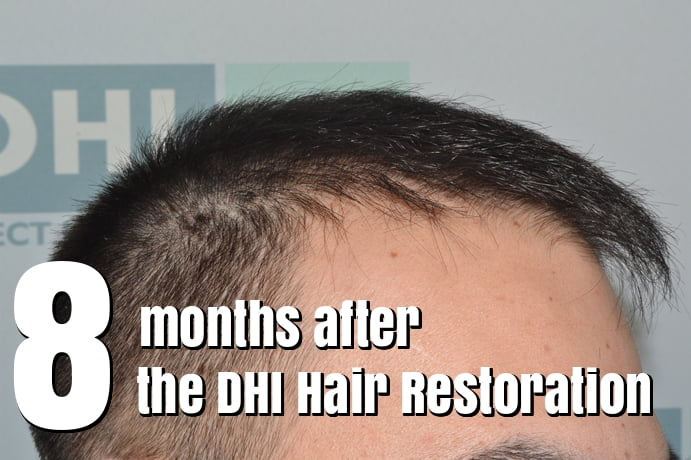 8 Months After the DHI Hair Restoration