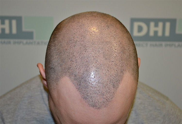 Μετά-το-Scalp-Micropigmentation