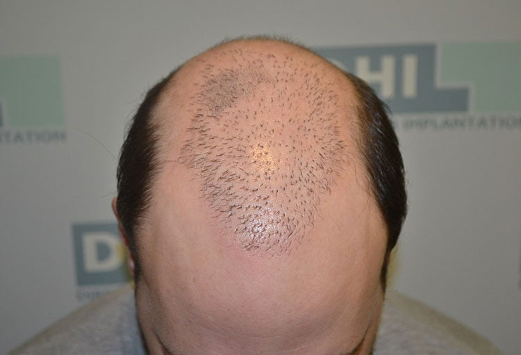 Πριν-το-Scalp-Micropigmentation