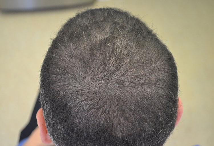 Scalp-Micropigmentation-After
