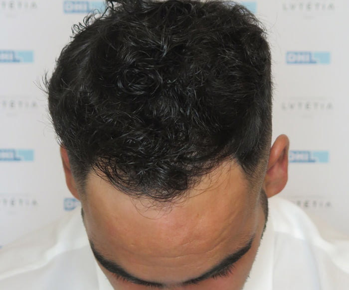 Hair Transplant - DHI Global